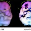 【ADHD】発達障害,うつ病の原因は脳のせい  困難な人生から早く脱却しよう