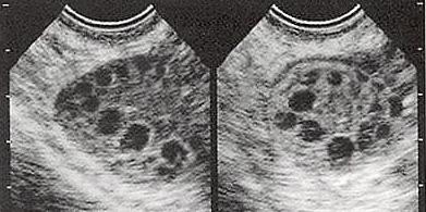 症候群 卵巣 嚢胞 多 性 多嚢胞性卵巣症候群 一般の皆様へ 日本内分泌学会