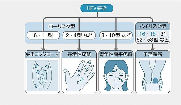 medu4 テスト ゼミ