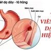 Cách điều trị viêm loét dạ dày và tá tràng tự nhiên