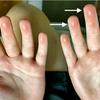症例36:プールに行ってから指先が痛く腫れてきた10歳男児(Am J Emerg Med. 2020 Nov 22;S0735-6757(20)31065-2.)