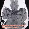 【症例報告】ATDもしくはSD-NFTと思われる93歳女性の3年経過報告。