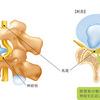 腰椎前弯消失タイプの特徴