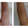 エンライトンⅢ(3波長最新ピコレーザー)稼働中!ピコレーザータトゥー除去No1クリニック!「早い」「綺麗」「圧倒的症例数!」ピコレーザー(エンライトンⅢ)でタトゥーを除去をしました。2回治療後です。