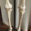 膝の痛みに悩まれている方、骨を疑って。