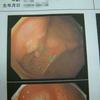 大腸の内視鏡検査 一年後