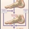 糖尿病で足を失わないためには足潰瘍の予防が重要 - 2021年3月更新【NEJM】糖尿病足潰瘍のレビュー論文