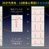 ECG-354:answer (1/3)= 心電図検定試験:傾向と対策 Q.002 =