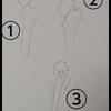 60代義母、大腿骨頚部骨折の手術