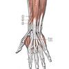 【現代病】スマホ腱鞘炎には環境設定とテーピングで対策をとれ!