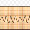 心室頻拍(VT)を見つけたら