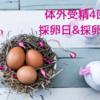 【不妊治療】4回目の体外受精・採卵日当日&採卵結果