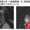 超!大好評!先日TBSにて放送された宮本亜門さんが告白した前立腺がんを専門医が解説!3前立腺MRIについて