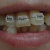歯列矯正開始から3週間が経ちました。