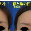 厚労省承認新ヒアルロン酸(ボリフト)注射で額のボリュームアップとまぶたの凹みを治しました。