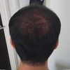 初期脱毛が減ったΣ(゚Д゚) (67日目)