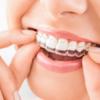 【歯列矯正Q&A】リテーナー(保定装置)の使用感について【クリア・ワイヤー】