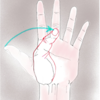リウマチ母指変形と手指変形(スワンネックとボタン穴)の障害への寄与割合は?