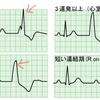 健診で心電図異常を指摘されたら・・・。