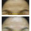 「額のシワへのヒアルロン酸注入」ルーチェ東京美容クリニックビフォーアフター症例写真です。