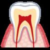ホームホワイトニングで歯がしみる理由と知覚過敏について