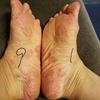 掌蹠膿疱症、こんなに酷かった足裏でした