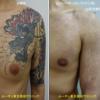 胸から腕にかけての広範囲カラータトゥーにピコレーザー治療をしています。