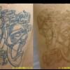 圧倒的症例数!ピコレーザー(エンライトン)でタトゥー除去をしています。2回治療後。