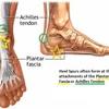 Dealing With Heel Spur