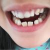 〚子供の歯のトラブル〛乳歯が抜けきらないうちに大人の歯が生えてきたらどうする? ~その後の経過(画像あり)