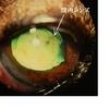 眼科診療について