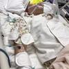 縦隔腫瘍切除手術
