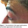 伝染性単核球症で認める上眼瞼の浮腫はHoagland徴候