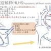 左心低形成症候群(HLHS:hypoplastic left heart syndrome)〜成り立ち など 疾患17