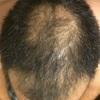 AGA治療から2ヶ月経過の報告