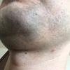 【毛3】髭永久脱毛1回目(1ケ月後)の効果残念状態! 何の変化もなし