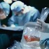 臓器移植後の毎日のルーチンの変更