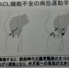 変形性膝関節症と前十字靭帯(ACL)の関係