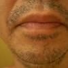 抑毛ローションを髭に使ってみた結果!こんなことになろうとは
