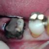 虫歯&歯牙破折予防にマウスガードをしよう&分割意図的再植術
