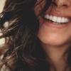 歯科でのホワイトニング結果 Opalescence(オパールエッセンス)