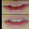 ピコレーザーで唇のほくろをとりました。