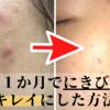 処方された薬でニキビ改善!【約一ヶ月で肌をキレイにした方法と経過】