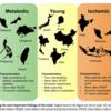 アジア11地域からの心不全患者におけるMultimorbidity。ASIAN-HFレジストリーを用いた前向きコホート研究
