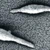マイコプラズマ感染症について