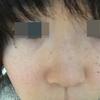 【湯シャン&肌断食54日目】髪の毛伸びるの早い湯シャンと顔の湯洗い