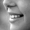 今日の歯並び④