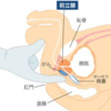 昨日TBSにて放送された宮本亜門さんが告白した前立腺がんを専門医が解説!!続編!!