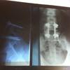 腰にボルトが入っても腰痛の治療はできます。