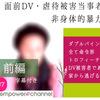 empower channel  #7 根来さん(30代)前編 インタビュー書きおこし